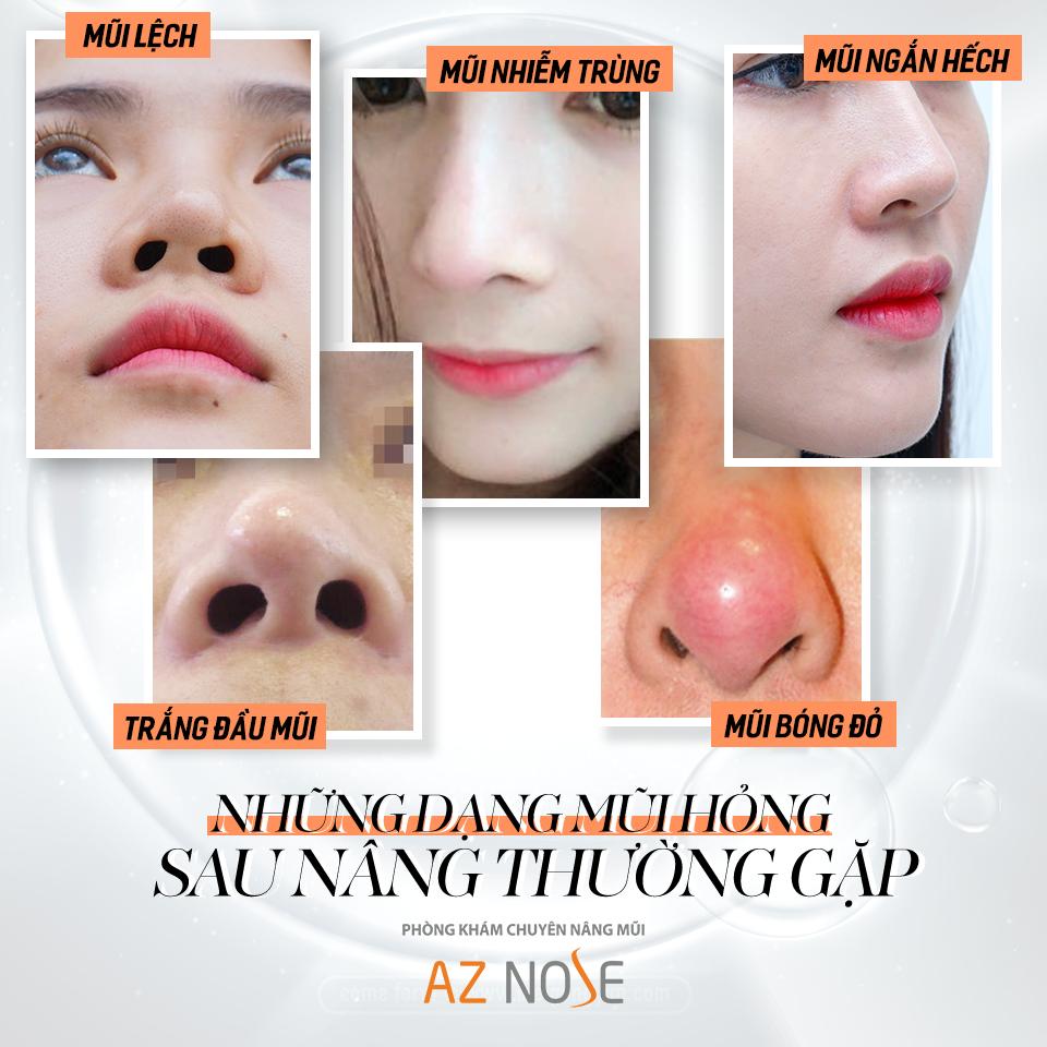 Các trường hợp mũi hỏng sau nâng mũi