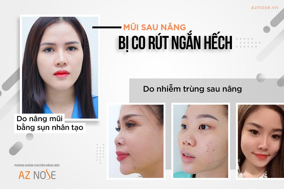 Một số hình ảnh mũi bị nhiễm trùng sau nâng dẫn đến ngắn hếch.