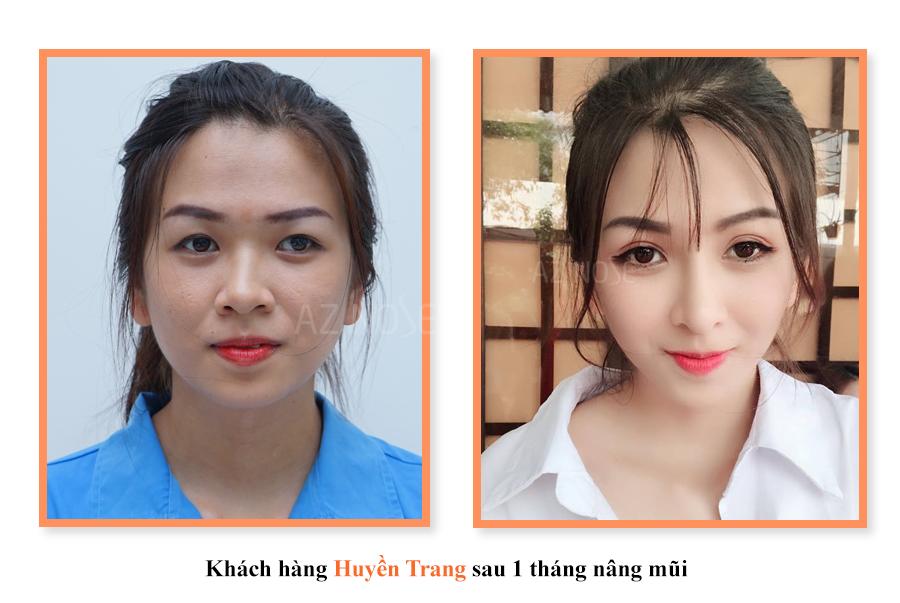 Dáng mũi lệch vẹo bẩm sinh của khách hàng được cải thiện đáng kể sau khi nâng mũi cấu trúc.