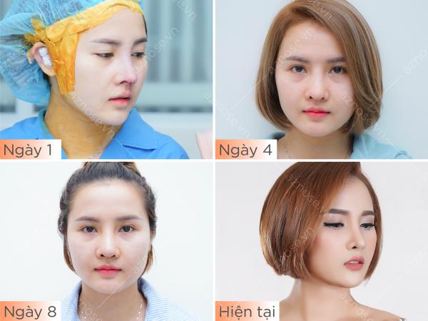 Sự thay đổi của dáng mũi theo thời gian