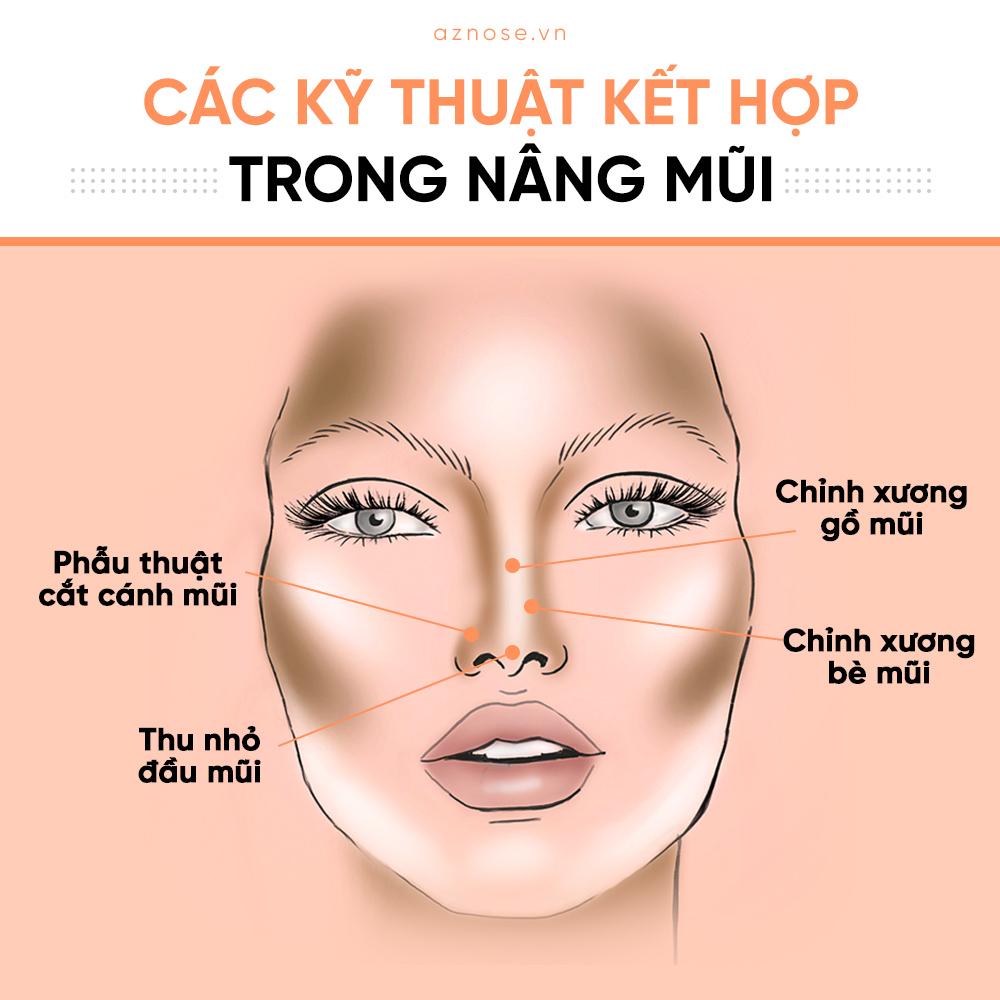 Ngoài ra, còn có các kỹ thuật khác giúp tạo nên dáng mũi hoàn hảo nhất.