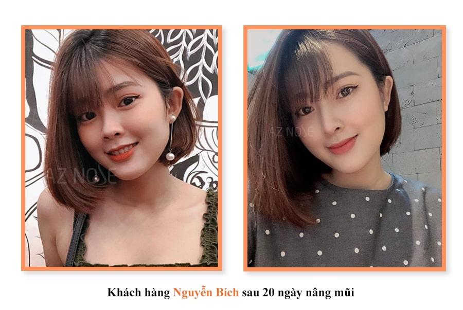 Khách hàng Nguyễn Bích sau 20 ngày nâng mũi