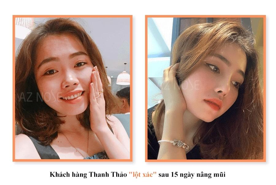 """Khách hàng Thanh Thảo """"lột xác"""" sau 15 ngày nâng mũi"""