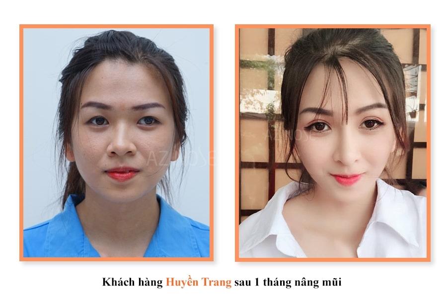 Khách hàng Huyền Trang sau 1 tháng nâng mũi
