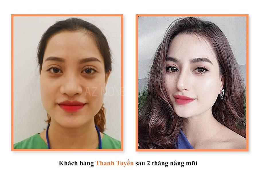 Khách hàng Thanh Tuyền sau 2 tháng nâng mũi