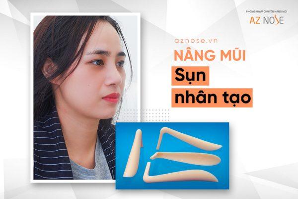 Phương pháp nâng mũi bằng sụn nhân tạo bọc thêm mô đầu