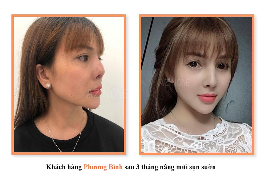 khách hàng Phương Bình sau 3 tháng chỉnh sửa mũi sụn sườn