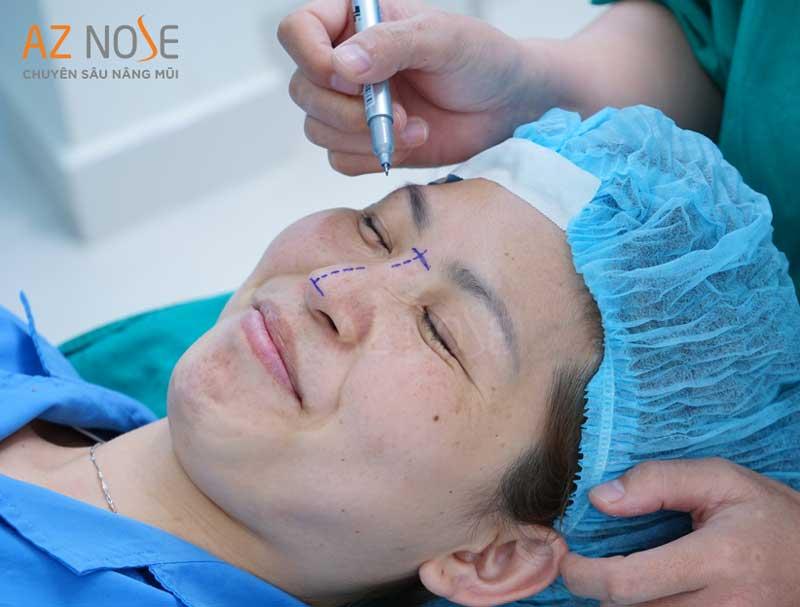 Bạn nên chuẩn bị tinh thần tốt trước khi phẫu thuật nâng mũi.