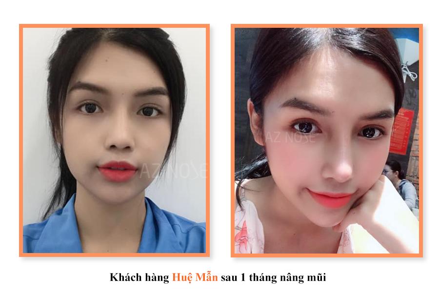 khách hàng Huệ Mẫn sau 1 tháng nâng mũi