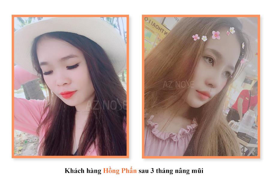 khách hàng Hồng Phấn sau 1 tháng nâng mũi