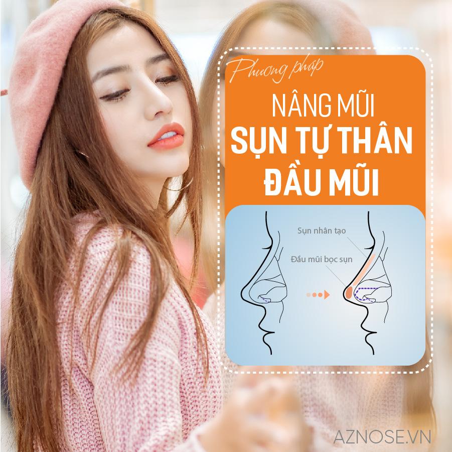 Các bác sĩ của phòng khám chuyên sâu nâng mũi AZ NOSE sẽ đề nghị phương pháp nâng mũi bọc sụn tự thân cho các khách hàng có nền mũi cơ bản và ít khuyết điểm