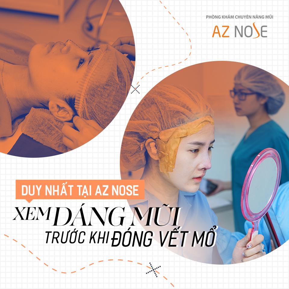 Khách hàng AZ NOSE được xem dáng mũi trước khi bác sĩ đóng vết khâu.