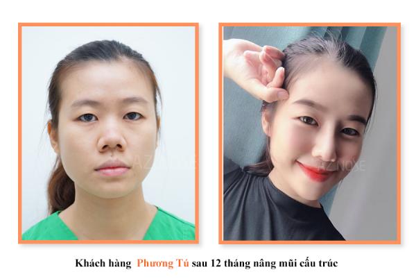 nâng mũi để khắc phục khuyết điểm mũi tẹt