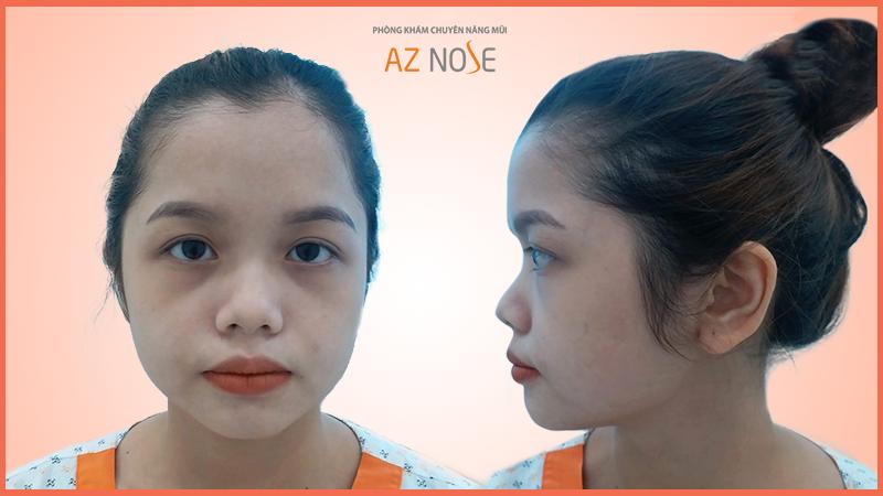 Tình trạng mũi bị ngắn hếch của khách hàng trước khi phẫu thuật nâng mũi tại AZ NOSE