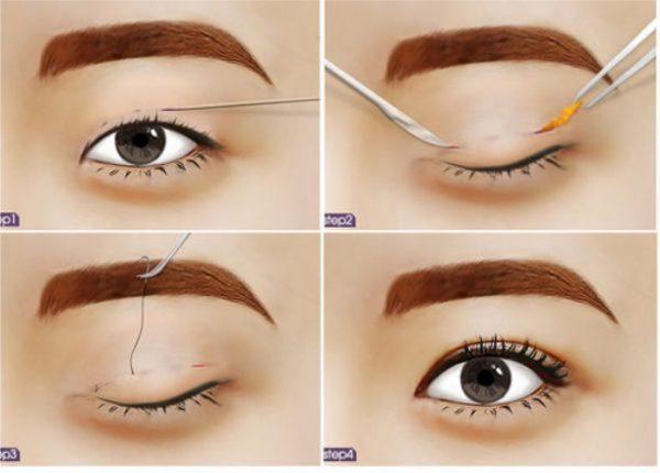 Nhấn mí là phương pháp để tạo mắt 2 mí khá đơn giản.