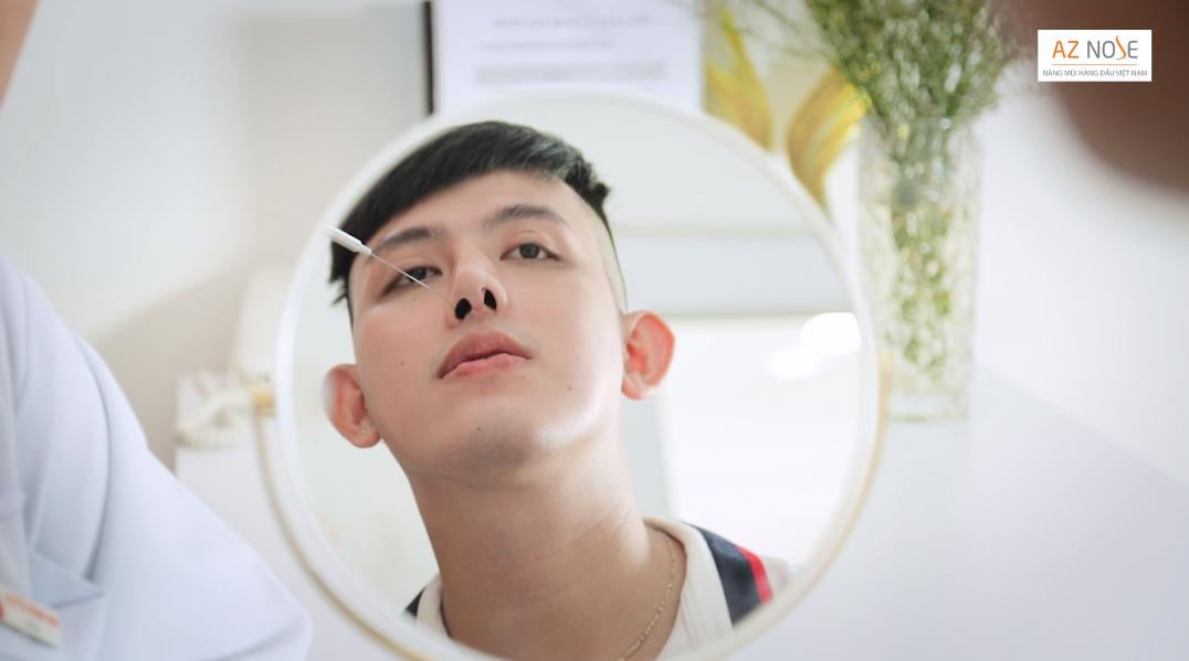 Lệch vách ngăn mũi làm tổng thể gương mặt mất cân đối.
