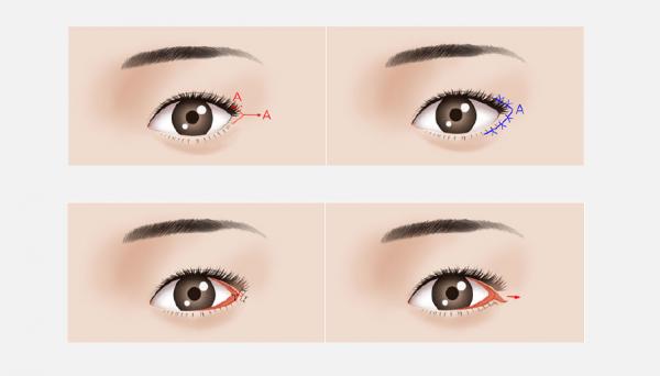 Một số kỹ thuật khác giúp mắt đẹp hơn như kéo dài đuôi mắt hay mở rộng góc mắt.