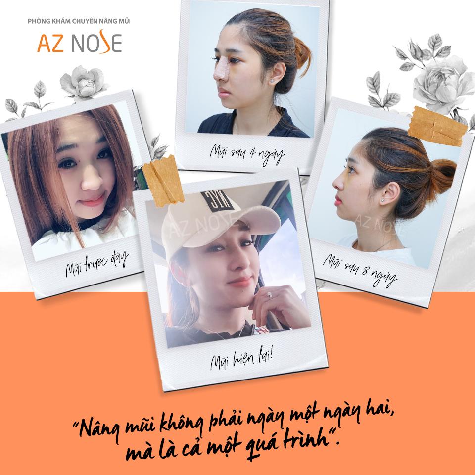 Nâng mũi là một quá trình. Vì vậy, hãy lựa chọn, tin tưởng và làm đúng hướng dẫn chăm sóc sau nâng bạn nhé!