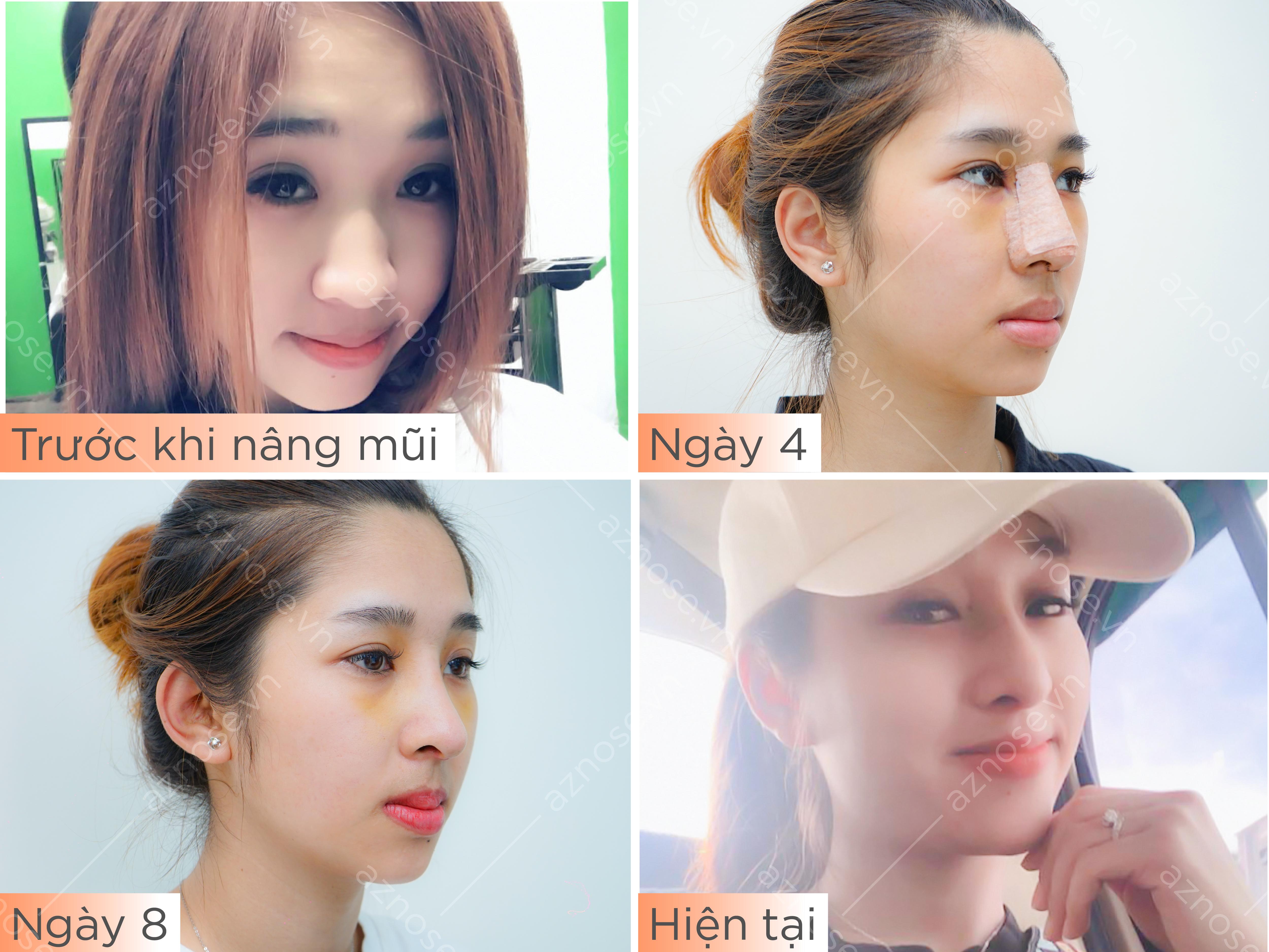 Hành trình nâng mũi của khách hàng Ngọc Huê tại Phòng khám chuyên sâu nâng mũi AZ NOSE