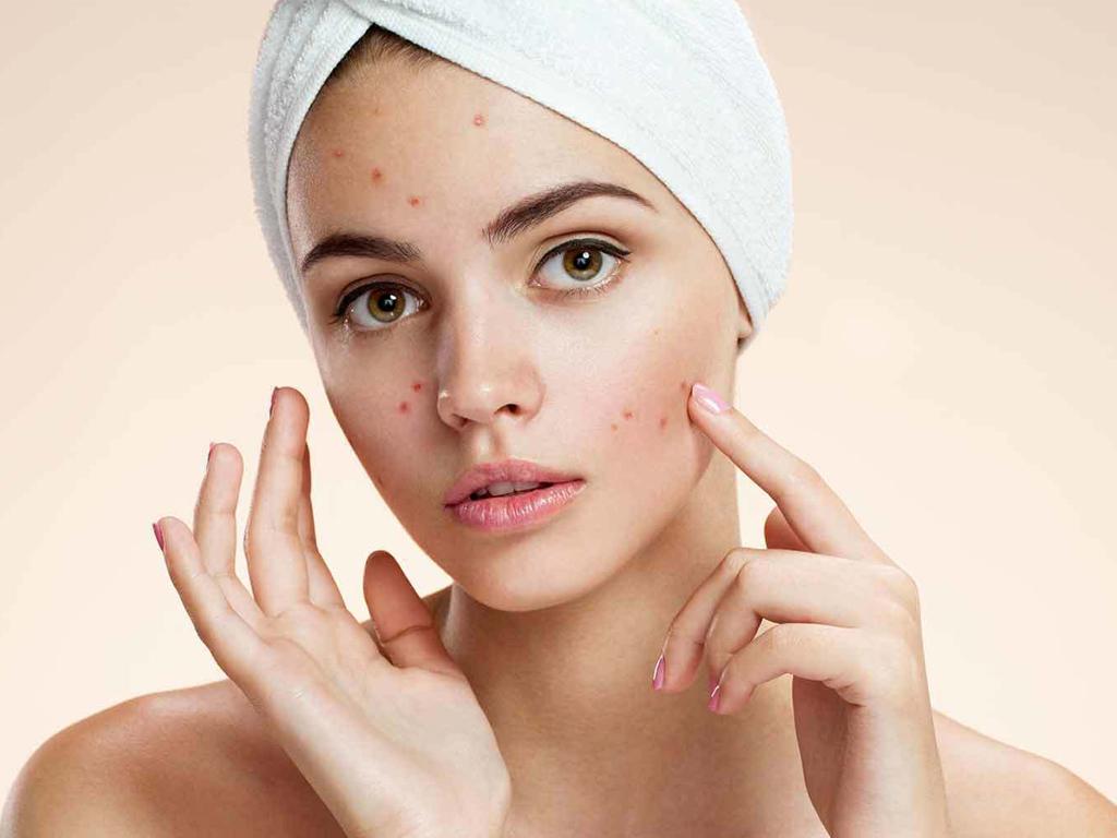 Ngoại lực tác động vào da mang theo nhiều vi khuẩn và bụi bẩn gây mụn
