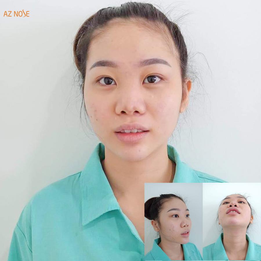 Mũi biến dạng nghiêm trọng, đầu mũi co rút, sẹo đầu mũi