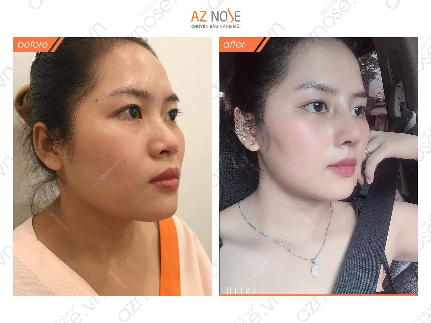 Nâng mũi cấu trúc Surigiform mang đến cho khách hàng Kim Quyên một gương mặt xinh đẹp, thanh tú hơn