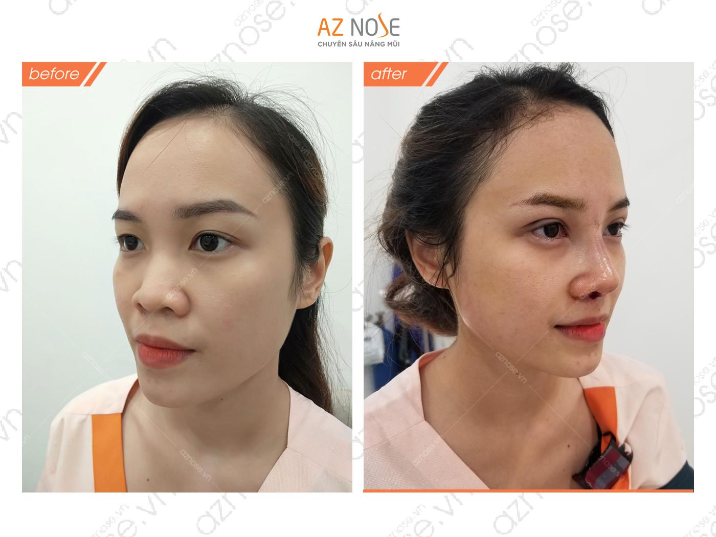 Khuyết điểm mũi thấp, đầu mũi to được khắc phục hiệu quả sau khi nâng mũi cấu trúc Surgiform