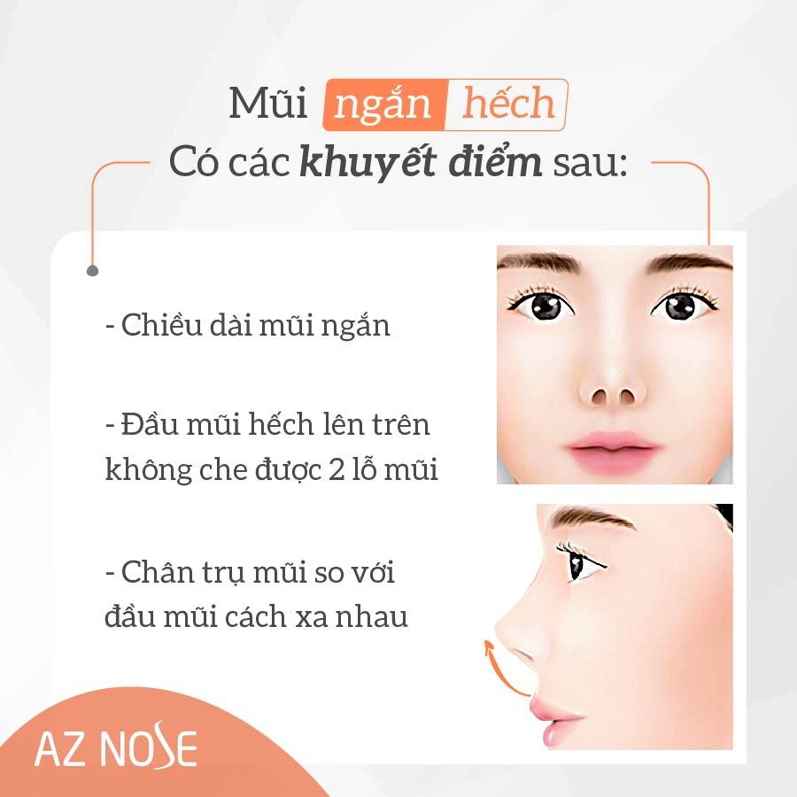 Các đặc điểm thường thấy ở mũi ngắn hếch.