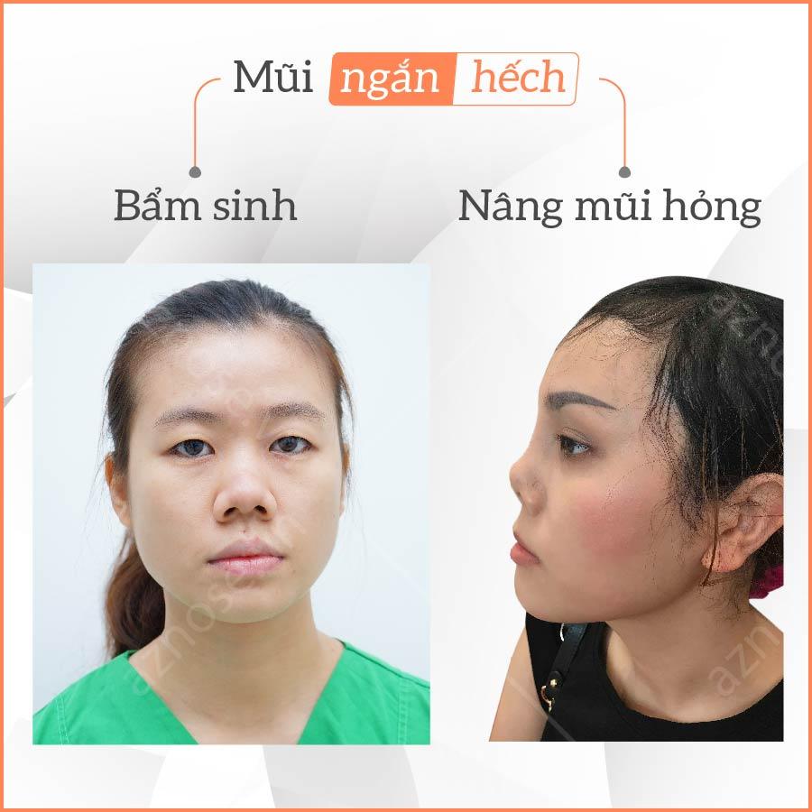 Nguyên nhân mũi ngắn hếch có thể do bẩm sinh hay nâng mũi bị hỏng.
