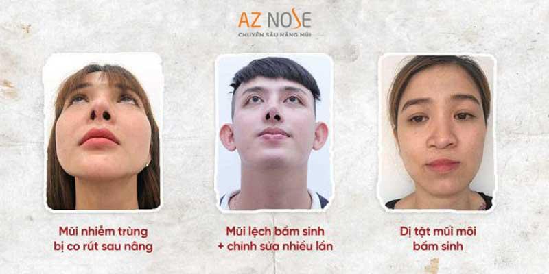 Các trường hợp mũi lệch thường gặp.