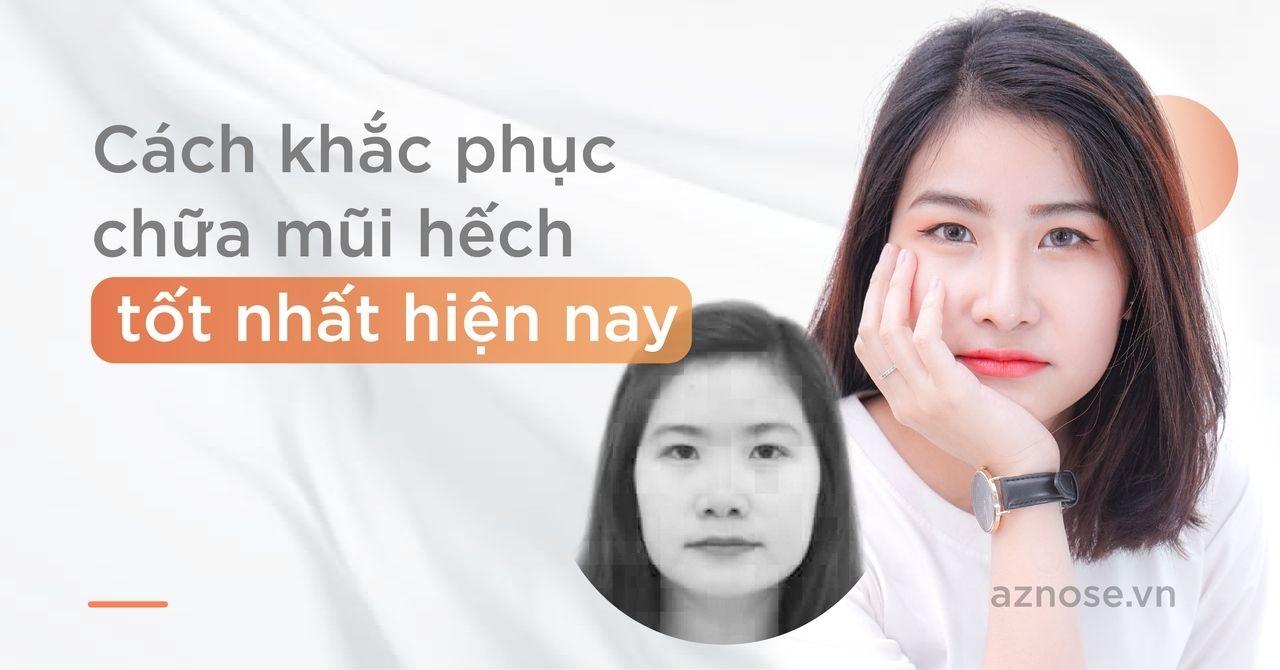 Cách khắc phục chữa mũi hếch tốt nhất hiện nay