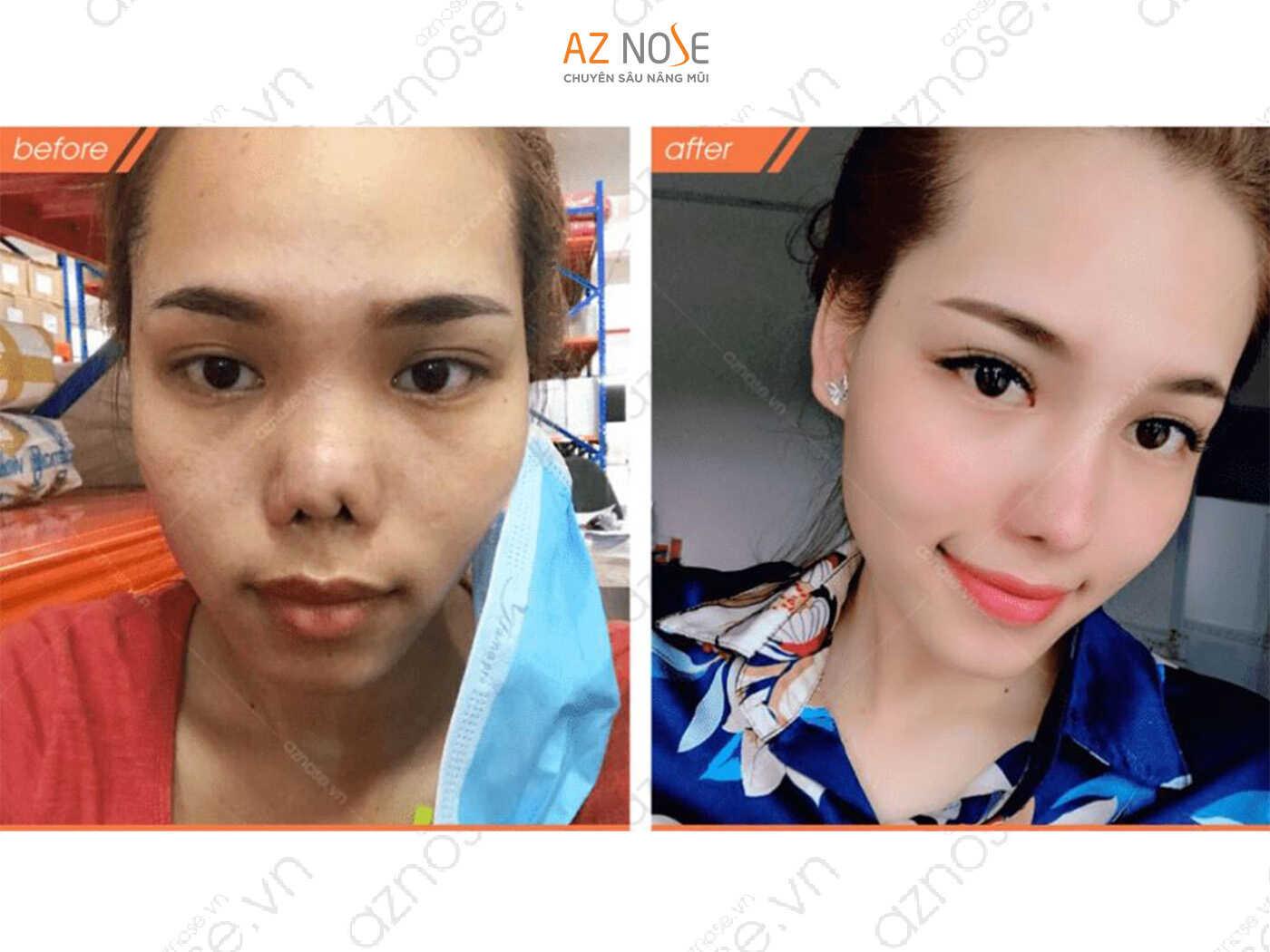 Khách hàng xinh đẹp sau khi sửa lại mũi hỏng do nhiễm trùng trước đó.
