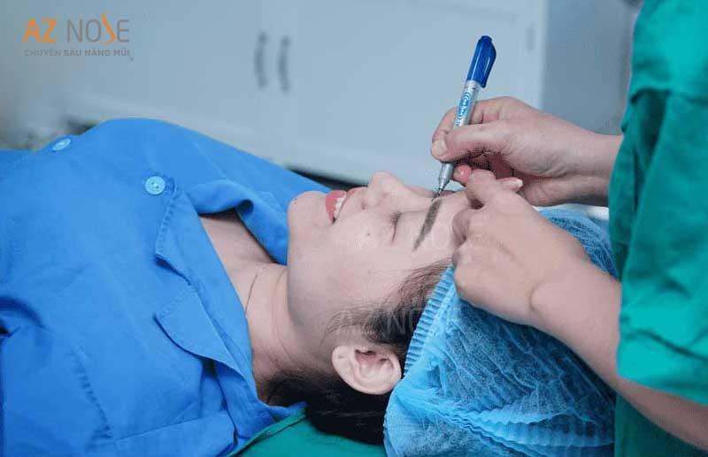 Bác sĩ chuyên môn cao phẫu thuật sửa lại mũi lõm tại AZ NOSE.