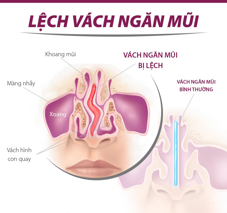 Hiện tượng lệch vách ngăn mũi