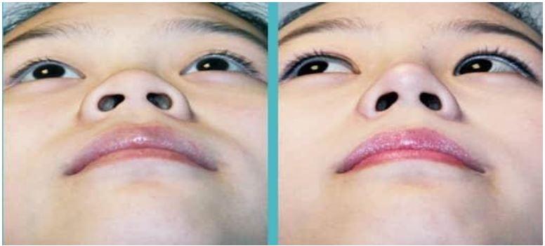 Ưu nhược điểm của phương pháp cắt cánh mũi
