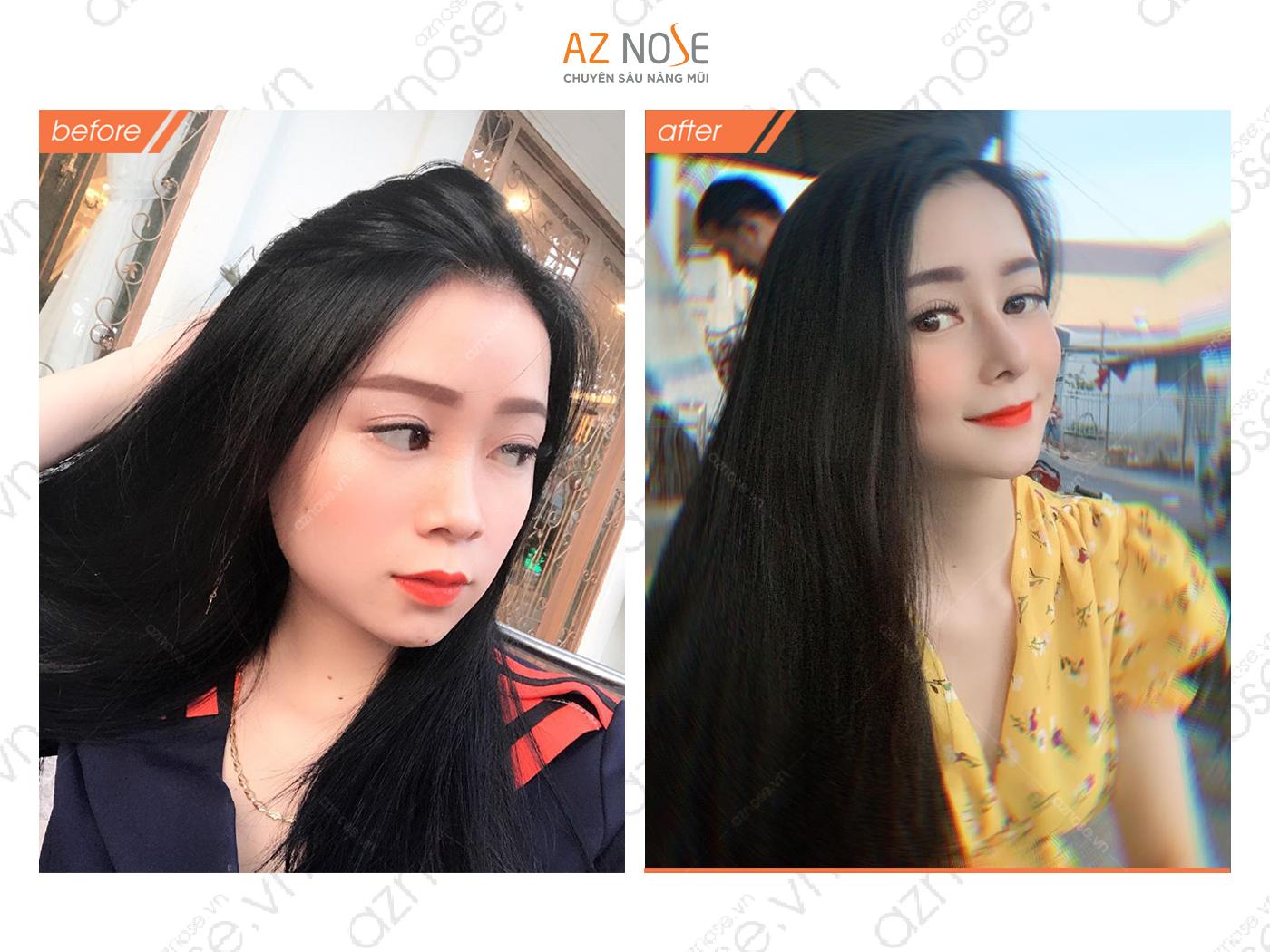 Khách hàng Thùy Trang với dáng mũi đẹp thanh tú