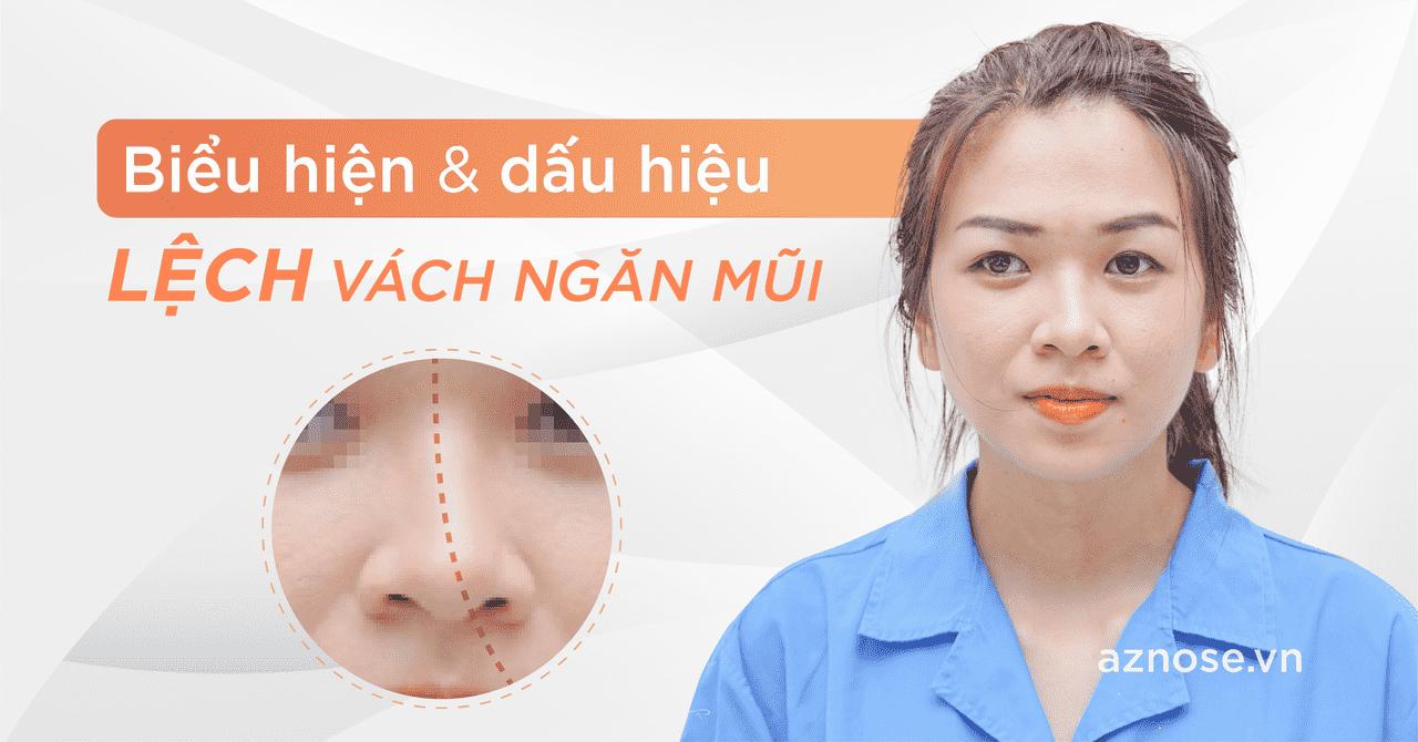 Biểu hiện dấu hiệu lệch vách ngăn mũi