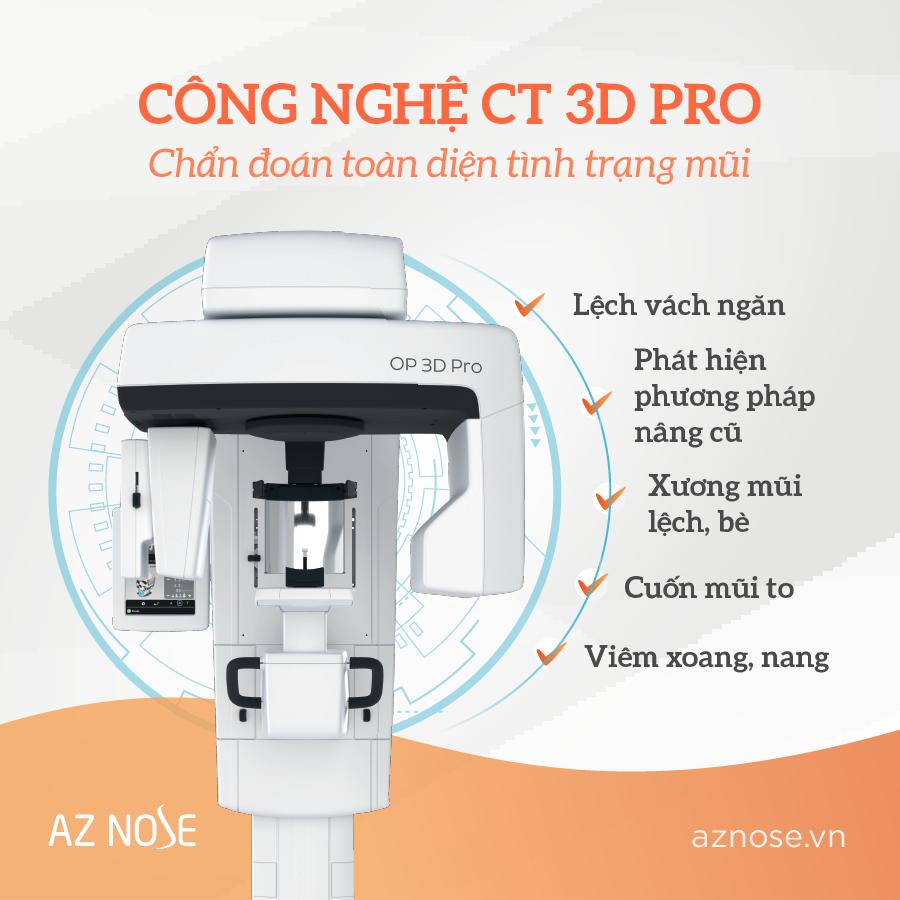 Công nghệ CT 3D PRO cho phép chẩn đoán toàn diện tình trạng mũi