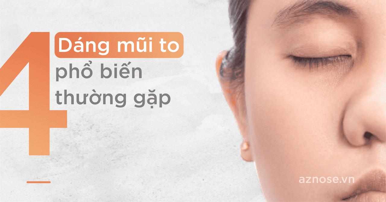 4 dáng mũi to phổ biến thường gặp