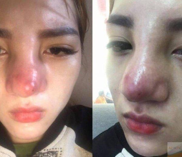 Những biến chứng có thể gặp khi nâng mũi