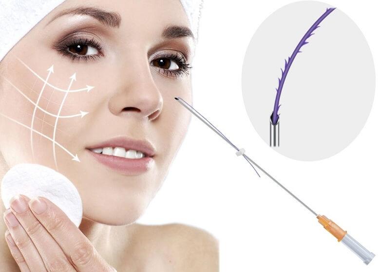 Nâng mũi chỉ Collagen dùng được bao lâu