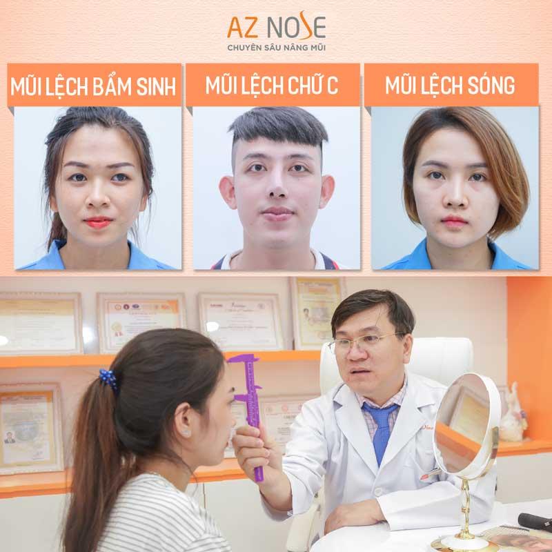 Để biết rõ tình trạng mũi lệch vẹo, bạn nên đến các Phòng khám chuyên sâu nâng mũi để kiểm tra.