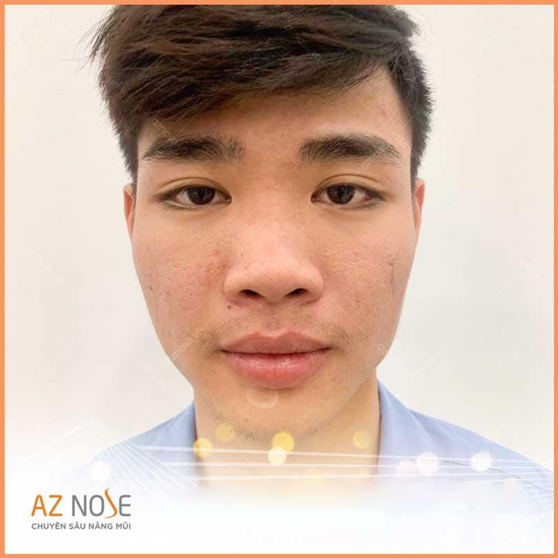Dáng mũi to thường khiến gương mặt mất cân đối.