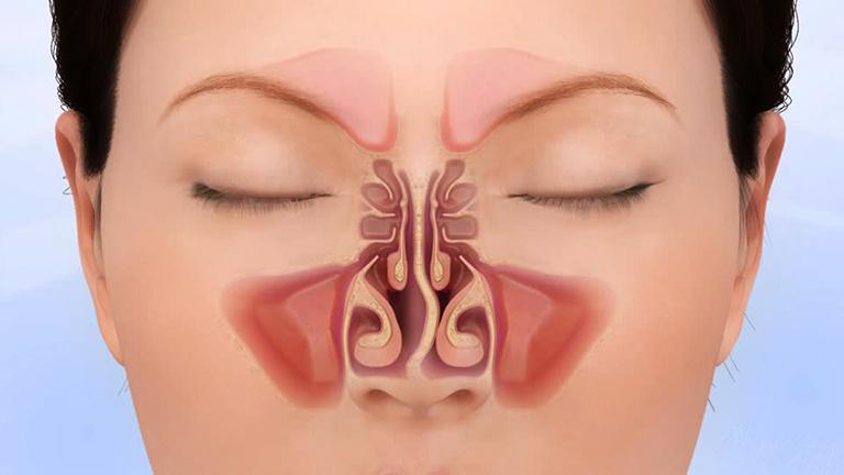 Cấu trúc bên trong của mũi có vách ngăn bị lệch.