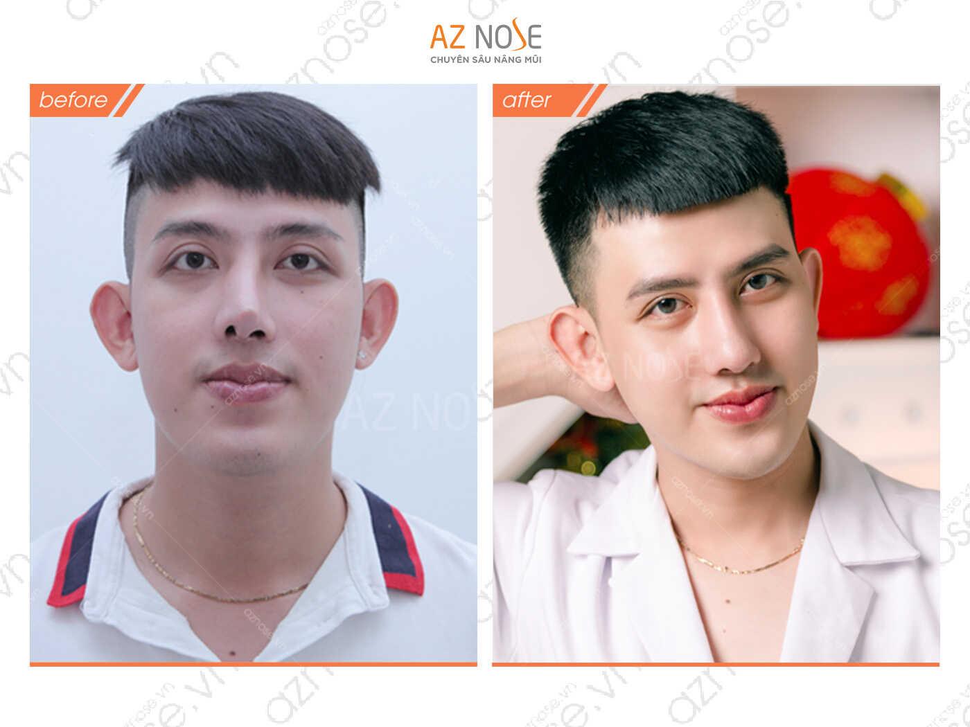 Phước Tường trước và sau khi phẫu thuật sửa mũi hỏng