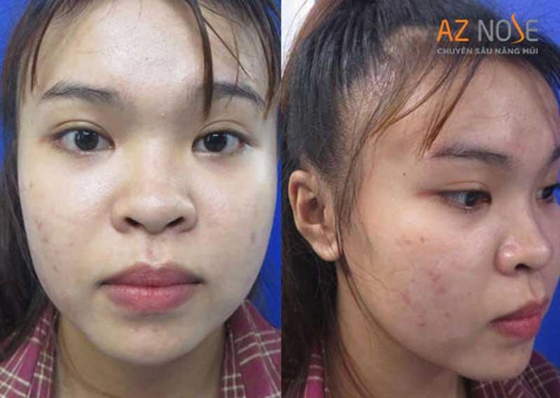 Nữ khách hàng sở hữu đầu mũi to và sóng mũi thấp.