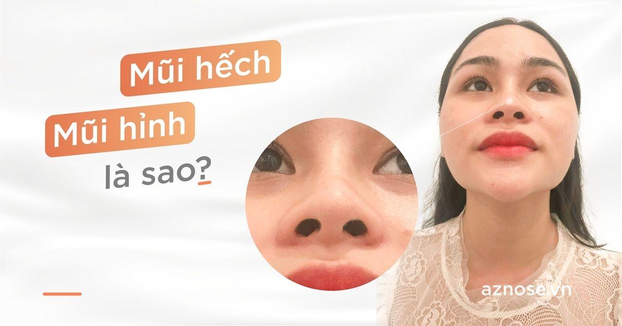 Mũi hếch là gì? Phương pháp chỉnh sửa mũi hếch hiệu quả?