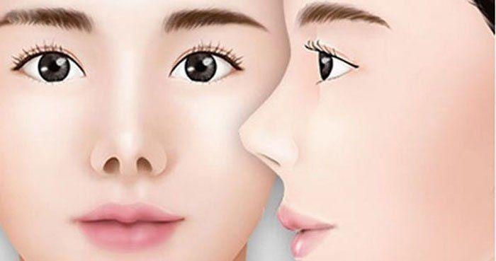 Mũi hếch có độ dài ngắn hơn 1/3 so với tổng thể gương mặt.