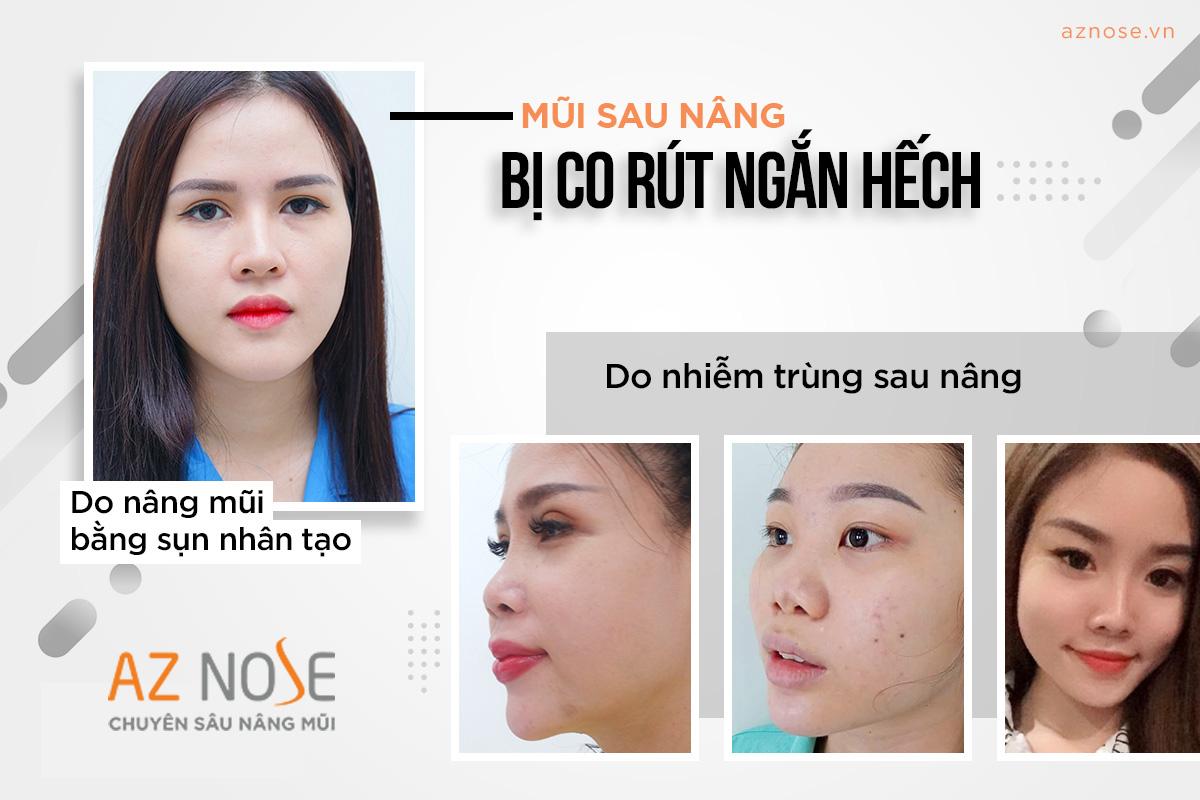 Tình trạng mũi bị co rút ngắn hếch sau khi nâng mũi do nhiễm trùng.