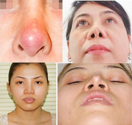 biến chứng có thể xảy ra trong quá trình nâng mũi